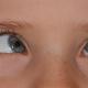 crossed-eye